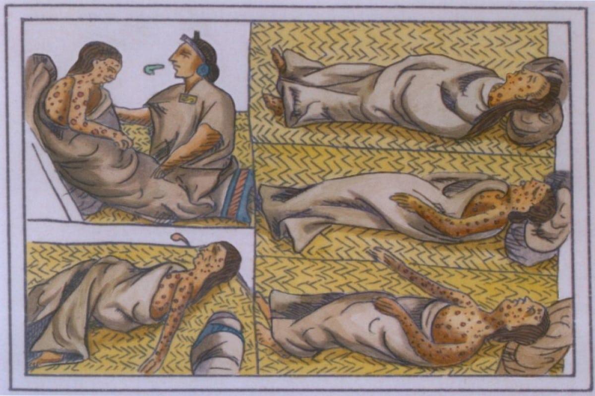 La viruela llegó a México en 1520, sin embargo pasaron más de 200 años para que llegara un tratamiento. Foto: Especial