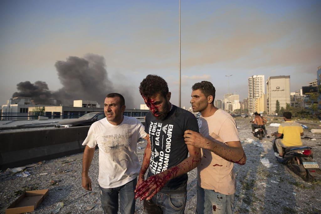 Personas ayudan a un hombre herido en la explosión en Beirut, Líbano. Foto: AP/Hassan Ammar